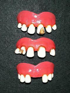 Faule Zähne Dentalqualität Zahn