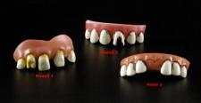 Faule Zähne, Gebiss, Horrorzähne + Abdruckmasse Modell 1