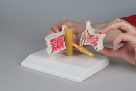 Osteoporose Wirbel