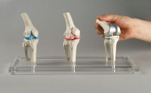 Knie Modell - Vorschau 2