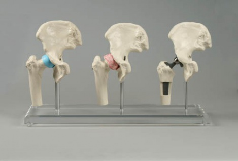 Modell Hüftimplantat