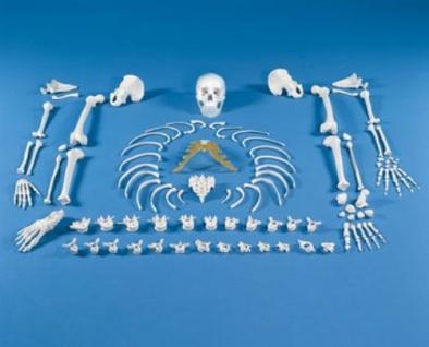 Skelett unmontiert