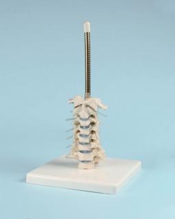 Schädel mit Halswirbelsäule