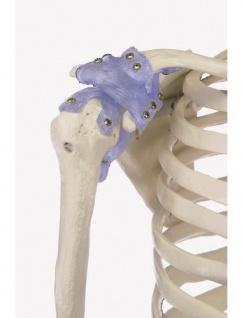 Skelett mit Bandapparaten - Vorschau 3