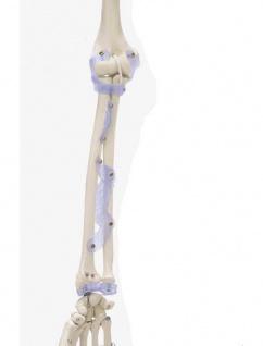 Skelett mit Bandapparaten - Vorschau 4