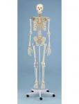 Skelett mit Bandapparaten