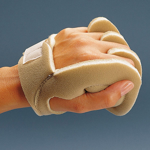 Handtellerschutz