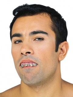 Zähne, Gebiss Zahn Spange, Oberkiefer, Filmqualität