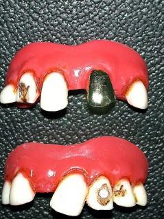 Faule Zähne, Gebiss
