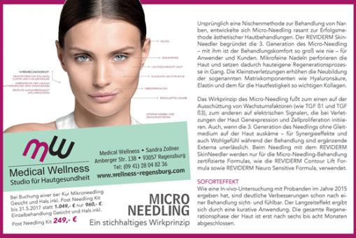 Micro-Needling bei Medical Wellness in Regensburg